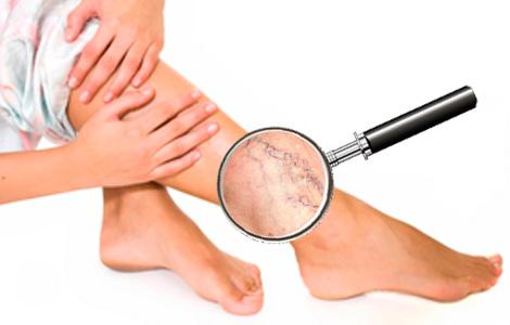 лечение варикоза вен на ногах