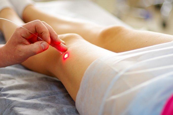 современные методы лечения варикоза