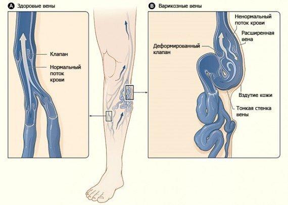 Механизм поражения венозного клапана